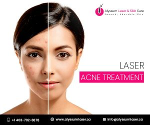 Laser Acne treatment Calgary