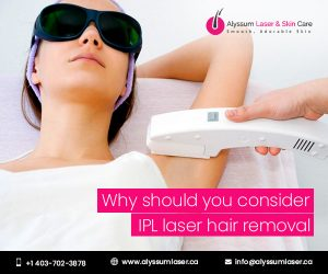 IPL laser hair removal