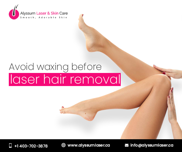 Laser hair removal in Calgary NE