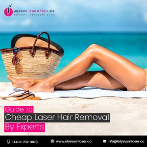 Cheap Laser Hair Removal